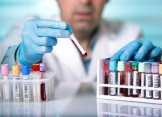 analisi sangue coronavirus test covid positivi